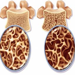 راه های درمان پوکی استخوان